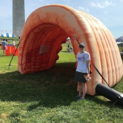 Me in front of the inflatable colon at the Crohn's and Colitis Foundation Take Steps walk in June 2016. I had just gotten out of the hospital and was too weak to finish the walk.
