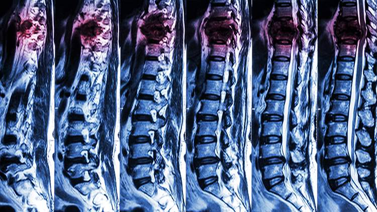 Proper diagnostic studies, such as an MRI, can help avoid gaps in treatment. If you know the severity of the injury, you're better equipped to treat it properly.