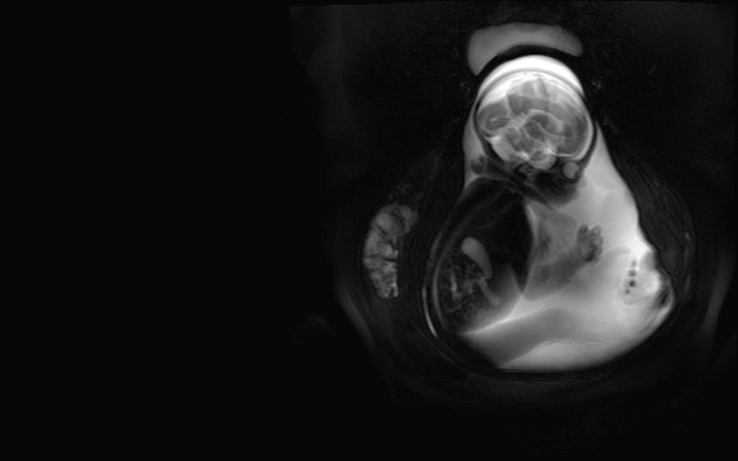 Womb zoom