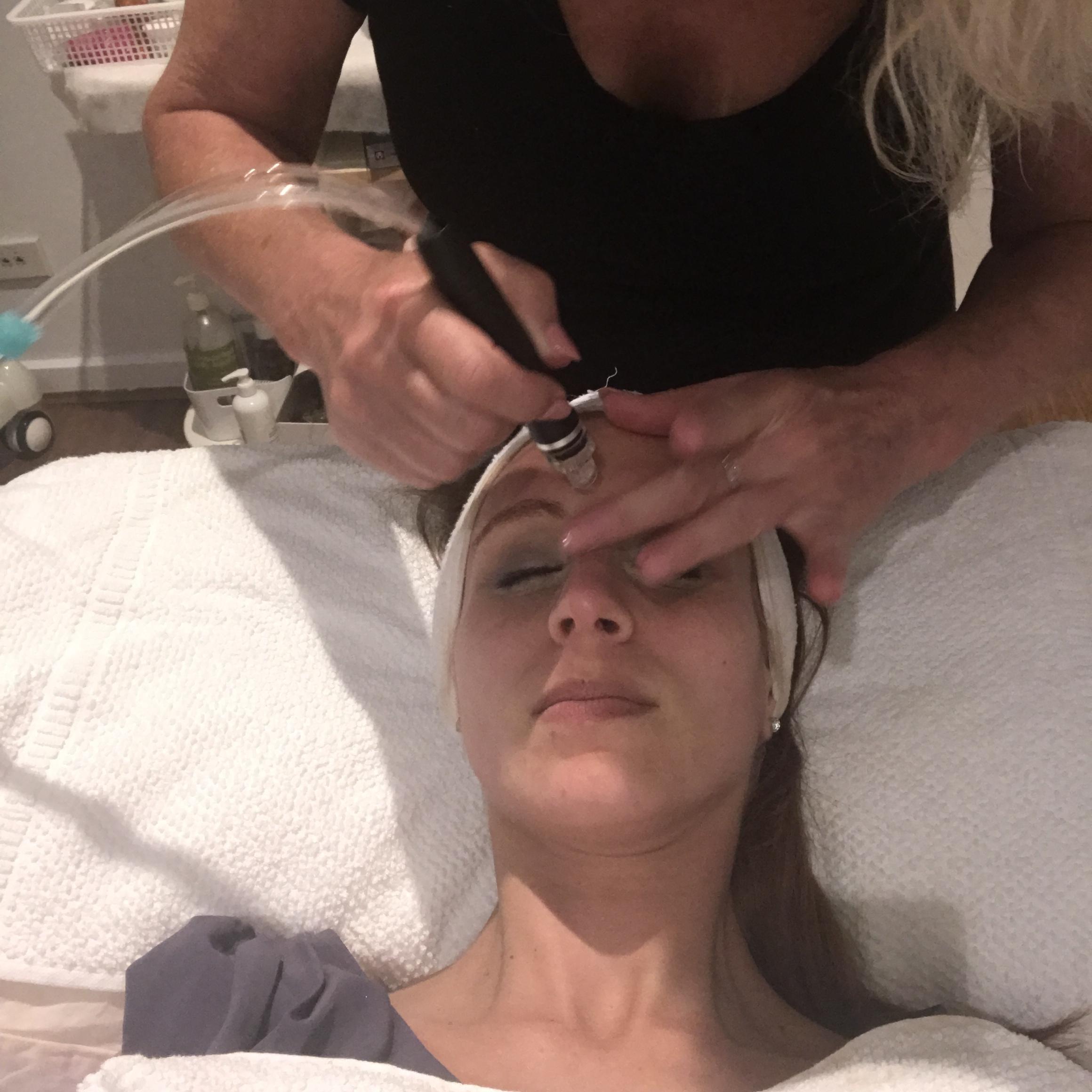 Canberra beauty blogger, hydrodermabrasion