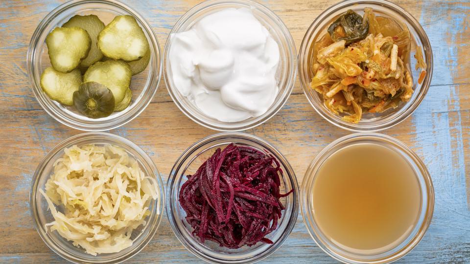 Forskjellig fermentert kost som er storartet for tarmhelsen:Fermenterte agurker, kokosmelk yoghurt, kimchi, surkål, rødbeter og eplesidereddik.