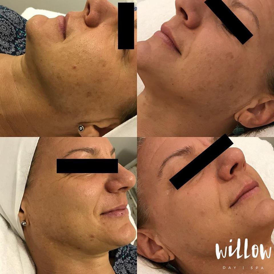 Before and After Dermapen Mel.jpg