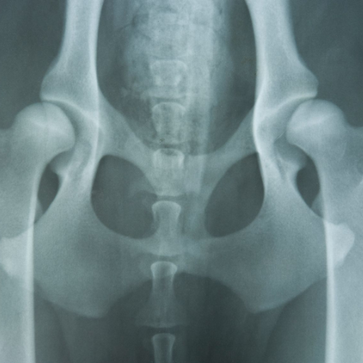 Hip Dysplasia -