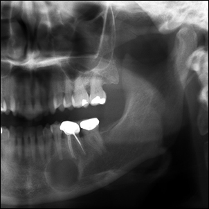 Mandibular cyst developed from a tooth with a failed root canal.