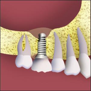 Bone graft and implant.