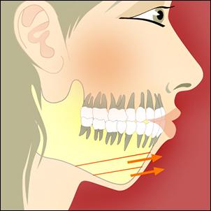 Chin advancement surgery (sliding genioplasty).
