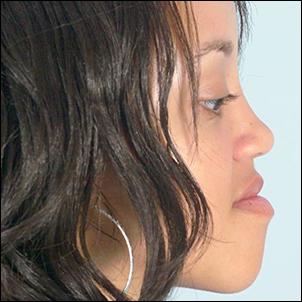 Antero-posterior chin excess.
