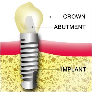 Dental Implant Diagram A