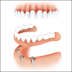 Lower denture retained by implants.