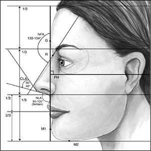 Nose Surgery Diagram A