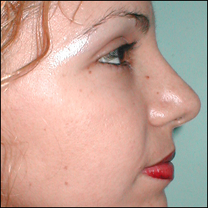 Corrected nasal hump with an open rhinoplasty.