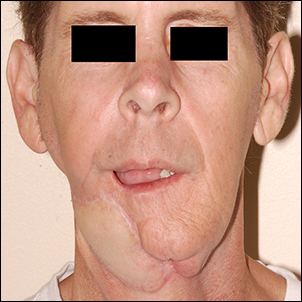 Acquired defect of the mandible after tumor treatment.