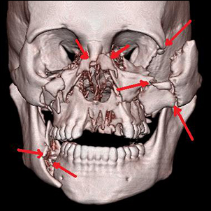 Multiple fractures of the face after a car accident.