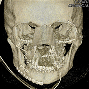 Nasal reconstruction and repair of facial fractures using titanium plates.