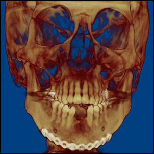 Anterior-posterior 3D CT scan after mandible fracture repair.