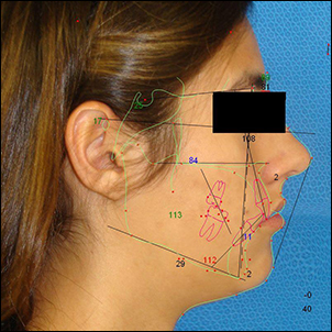 Maxillary and mandibular surgery improves mid-face and lower face projection.