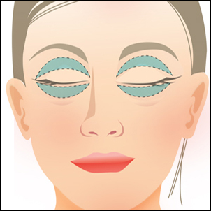 Incisions for blepharoplasty are hidden in the eyelids folds.