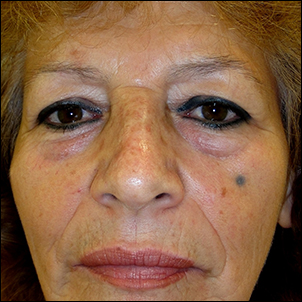 Fat prolapse and skin excess in both upper and lower eyelids.