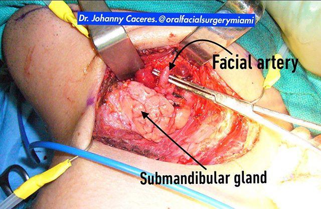 Neck approach (Risdon) to get access to a fracture in the left angle of the mandible. #facialtrauma #traumafacial #facialtraumasurgery  #oralsurgeon #cirujanooral #drcaceres #drjohannycaceres #dentalstudent #dentalschool #dentist #dentistry #maxillofacialsurgeon #odontology #odontologia #estomatologia #stomatology #oralfacialsurgerymiami #miami #coralgables