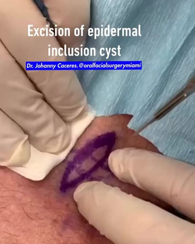 Excision of epidermal inclusion cyst in the left side of the neck. #cyst #epidermalinclusioncyst #skinsurgery #dermatology #dermatologist #dermatologo #dermatologia #skinremovalsurgery  #oralsurgeon #cirujanooral #drcaceres #drjohannycaceres #dentalstudent #dentalschool #dentist #dentistry #odontology #odontologia #estomatologia #stomatology #oralfacialsurgerymiami #maxillofacialsurgeon #cirujanomaxilofacial #miami #coralgables
