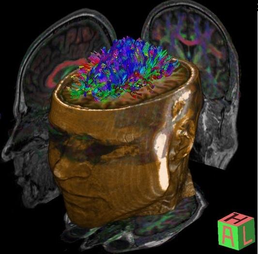 pete brain.jpg