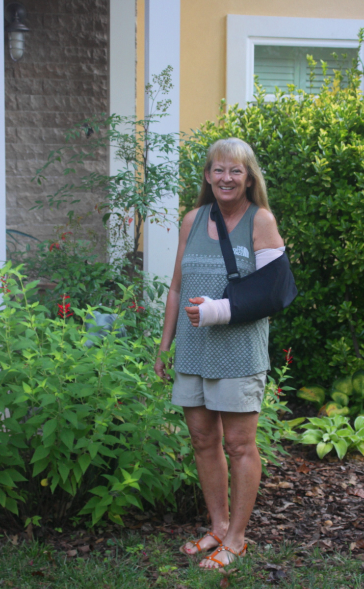 Day 2 after surgery on left wrist & elbow september2018 email.jpg