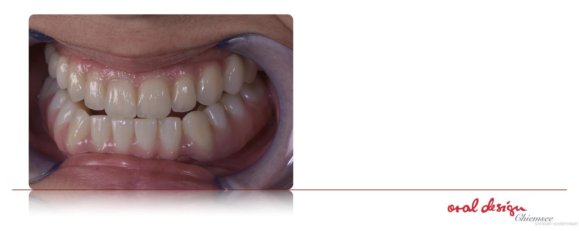 Implantatzahnersatz2.jpg