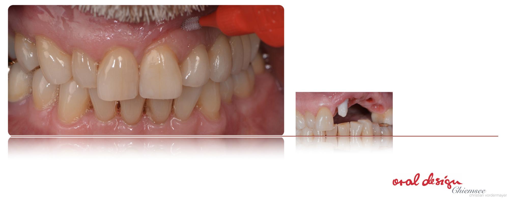 Implantatzahnersatz.jpg