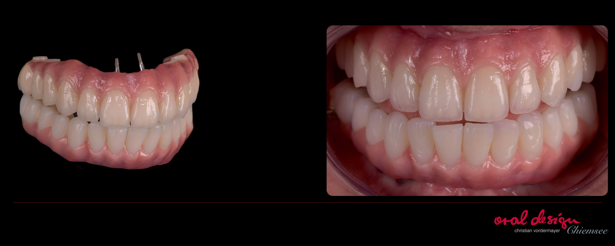 implantat-oraldesign-chiemsee-1.jpg
