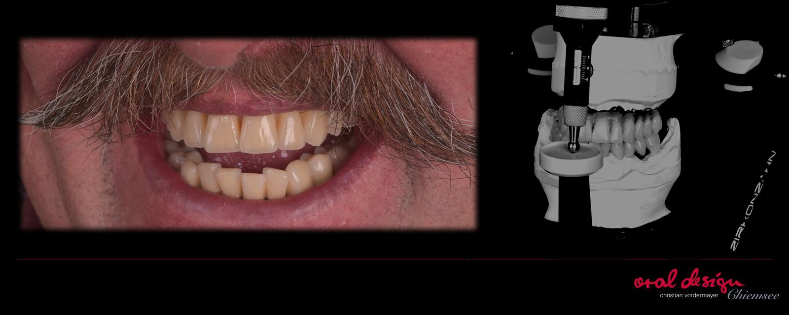 implantatprothetik-oraldesign-chiemsee-223.jpg
