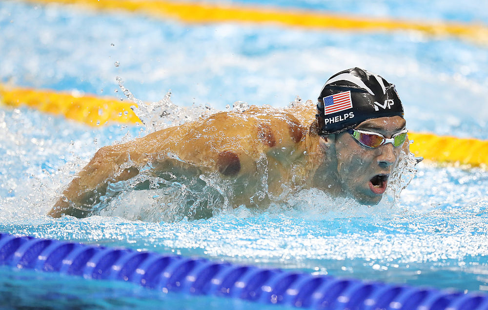 Michael Phelps competing after cupping treatment