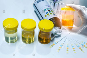 Urine-Analysis.jpg