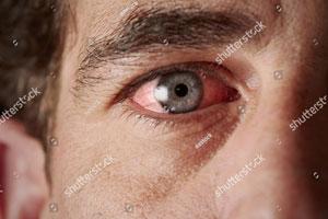 Pink-eye.jpg