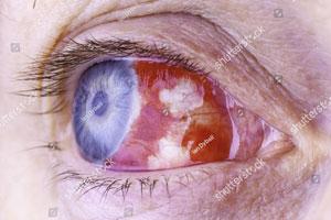 Chemical-trauma-to-the-eye.jpg