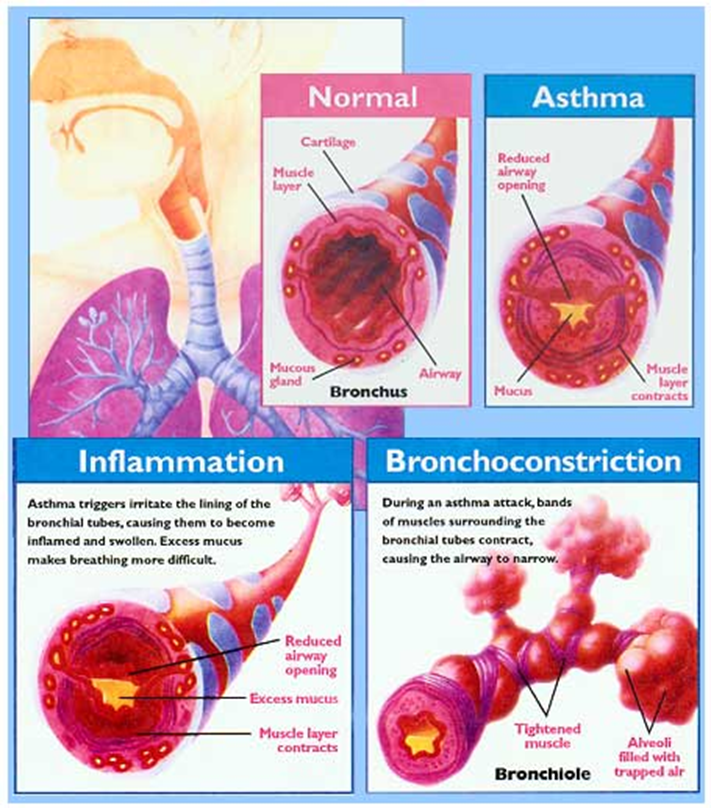 PHYSIOLOGY OF ASTHMA