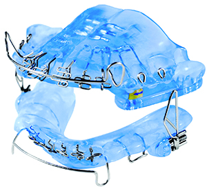 leduc DNA sleep apnea snoring appliance