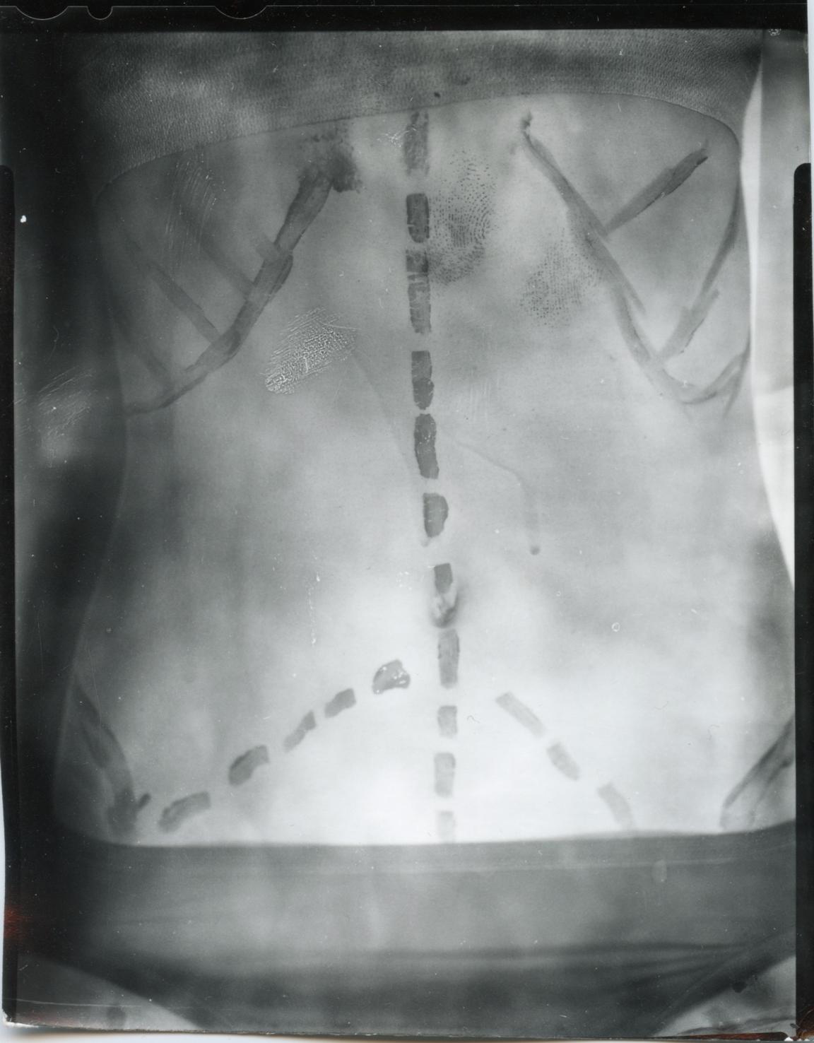 lower chest.jpg