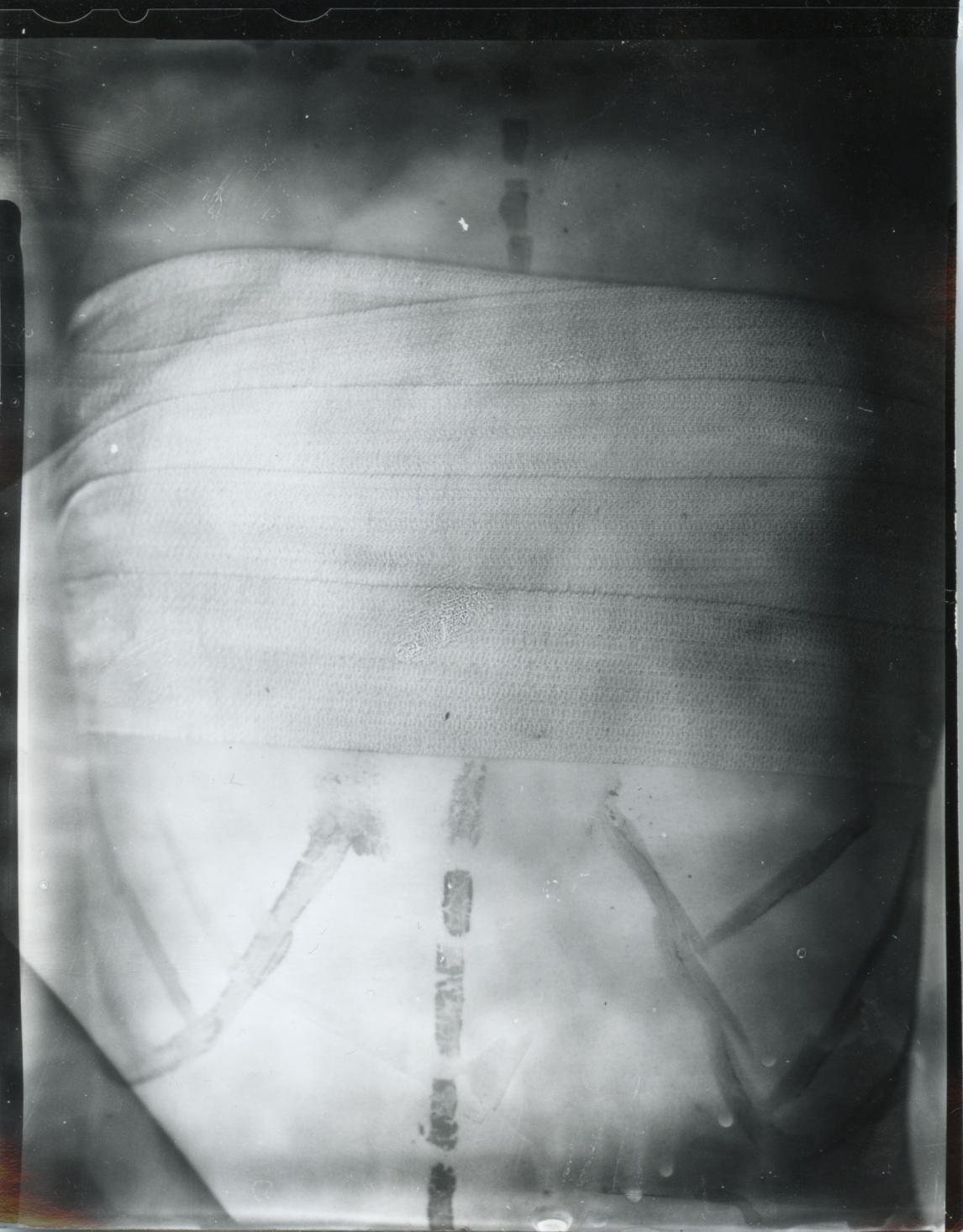 upper chest.jpg