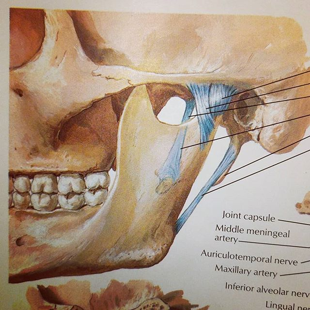 When I hear people say they have TMJ I'm never surprised as everyone has two. TMJ is simply a joint, the temporomandibular joint.  A combined hinge and gliding type of joint between the mandible and temporal bone. It has a unique biconcave disc that can be a source of jaw pain. This is usually what clients are trying to reference, TMJ disorder. It has a number of causes but if you experience any symptoms be sure to get tested by your dentist, RMT, physio or chiro. Signs and symptoms include pain and tenderness in jaw, ear or muscles of temple/jaw. Issues opening or closing mouth as well as crunching, popping, grinding and/or clicking. Other symptoms include neck pain or headaches. . . . . . #tmj #massagetherapy #movemassage #move #anatomy #netter #massage #tmjpain #tmjsyndrome #tmjdisorder #articularjoint #jaw #painrelief #wellness  #halifax