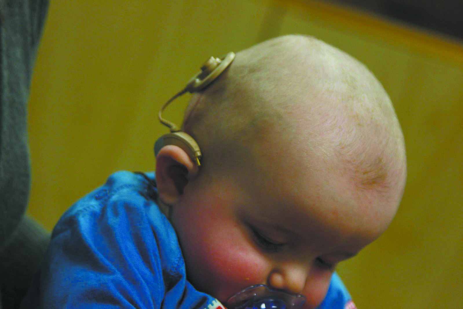 Issues - Cochlear Implants - cr. google free.jpg