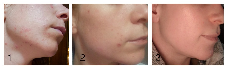 M's skin: (1) before, (2) after 3 days, and (3) after 3 months of using Mokosh certified organic skin care products