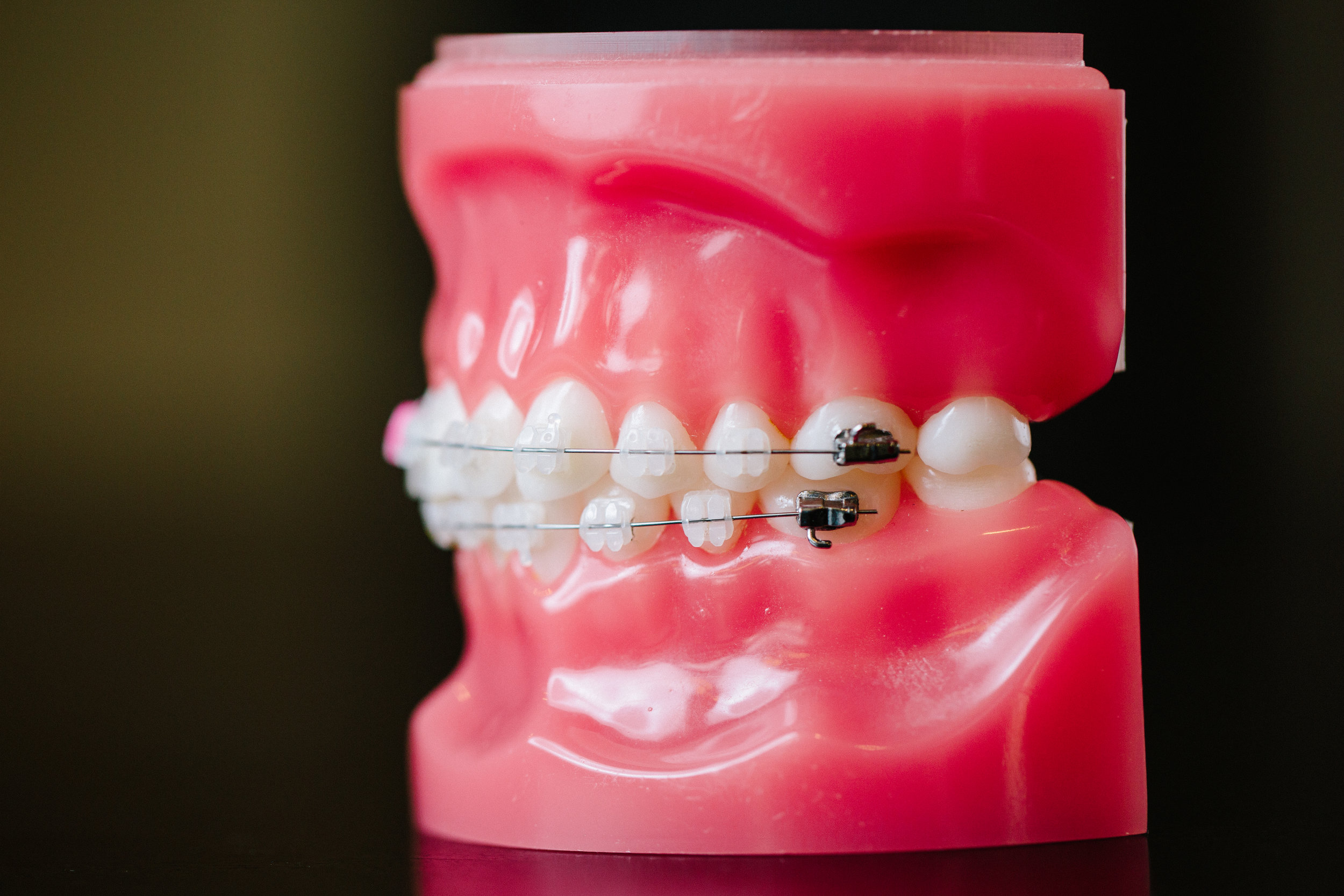Side view of tooth model with colorful braces