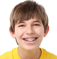 Smiling boy with braces