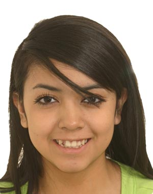 Young girl with snaggle tooth