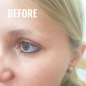 Before_eyebrows_gallery_09.jpg