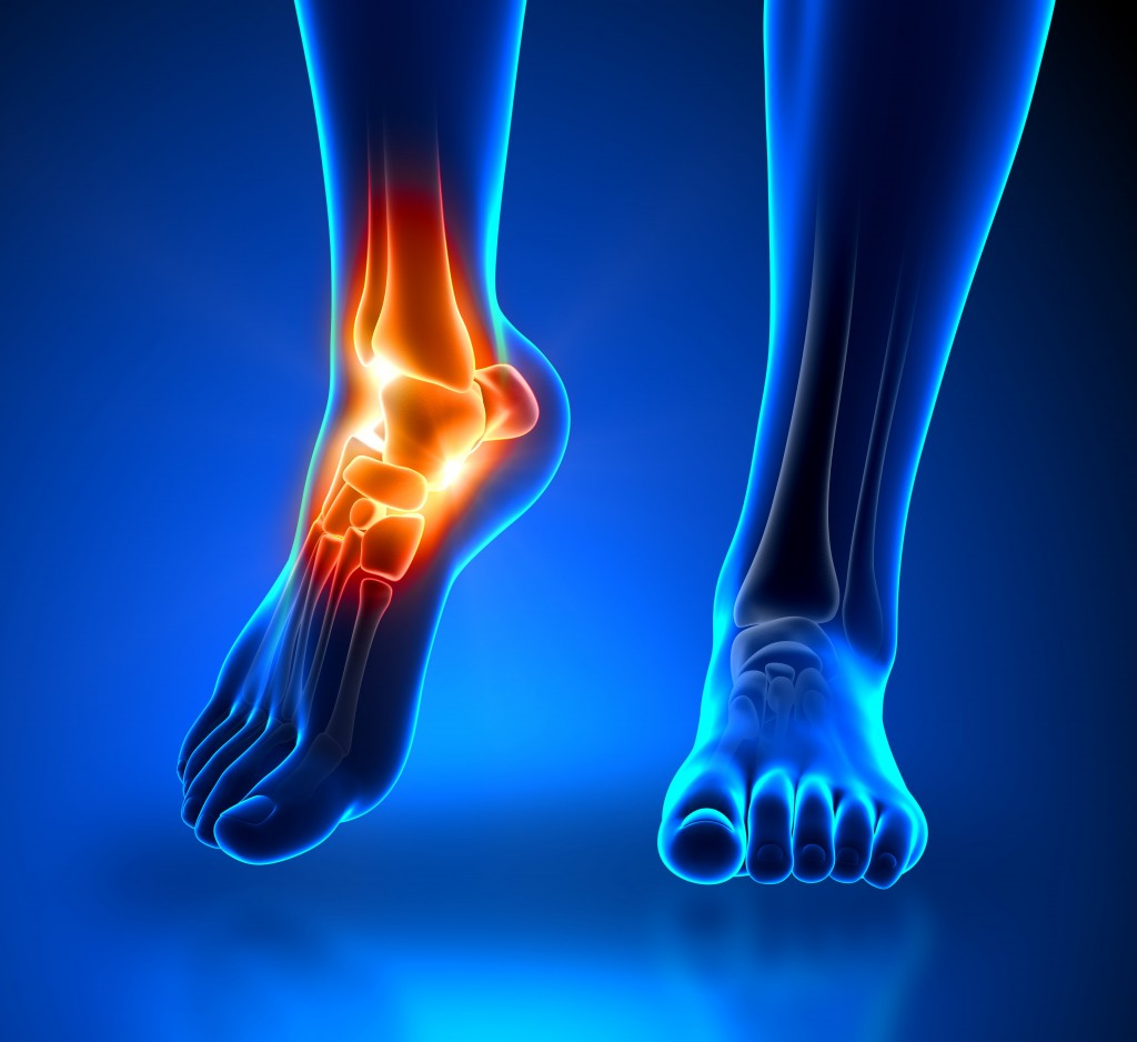 Ankle and Foot Pain