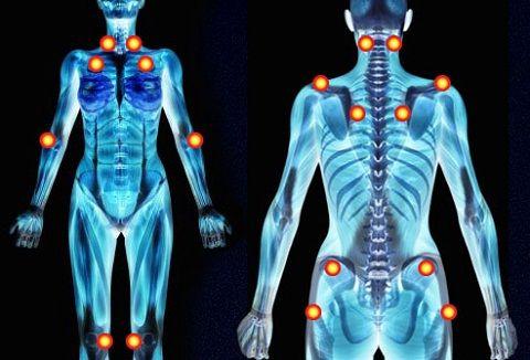 Fibromialgia Pain