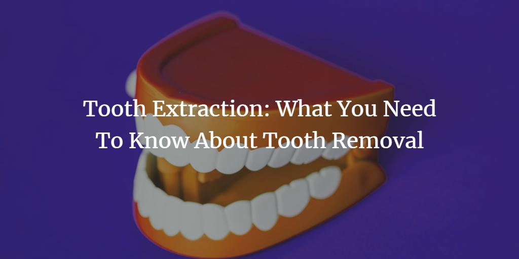 tooth-extraction-what-you-need-to-know-about-tooth-removal.png