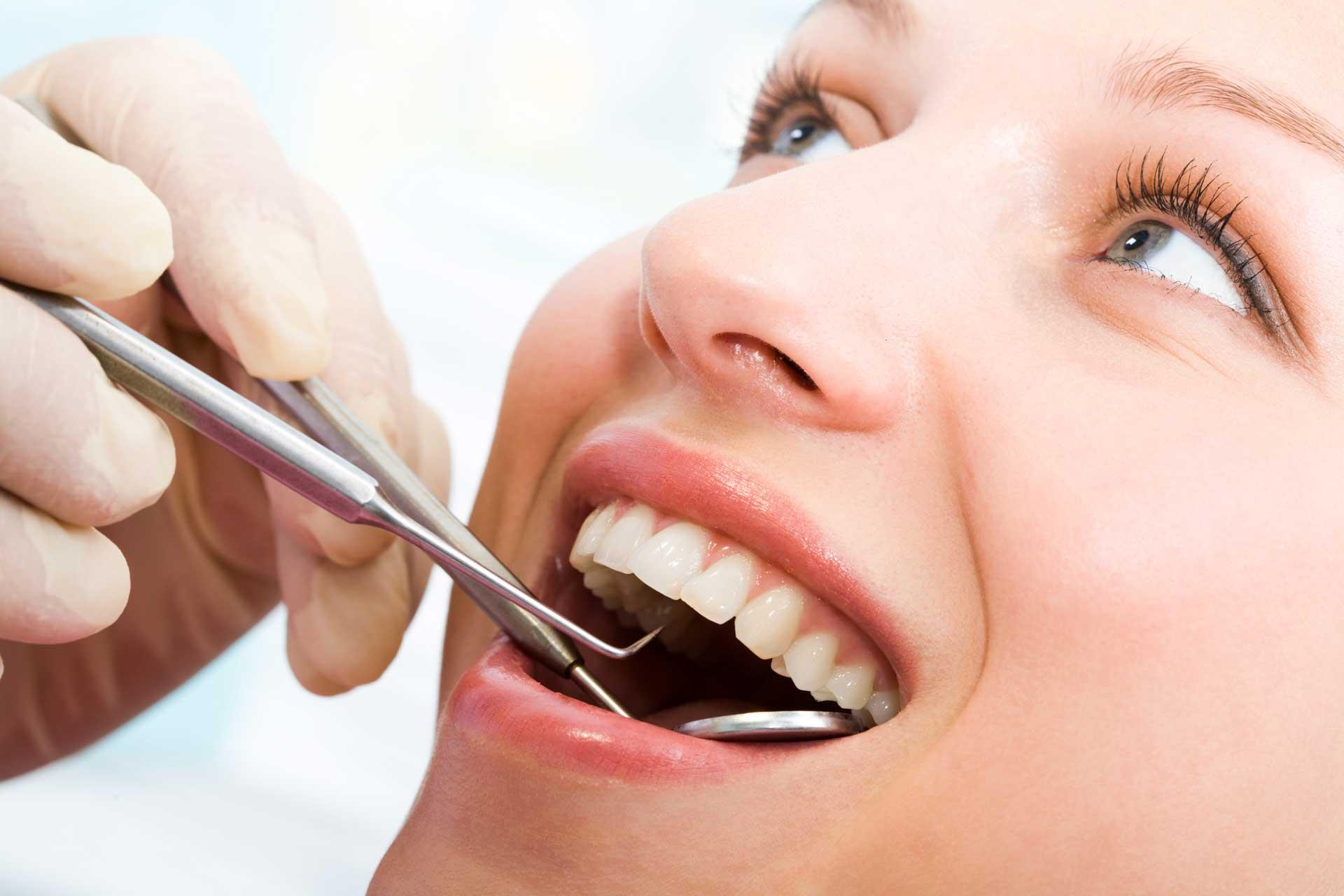 dental-filings-by-malan-family-dentistry-rockingham-nc.jpg
