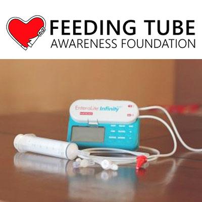 Feeding-tube_Aicardi-Goutieres.jpg